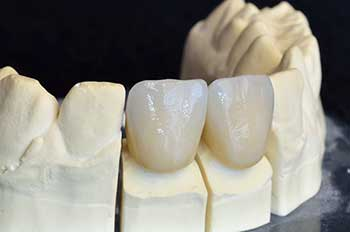 Bloomington Dental Crowns