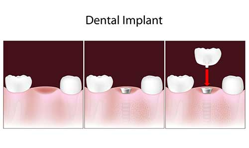 Bloomington Dental Implants
