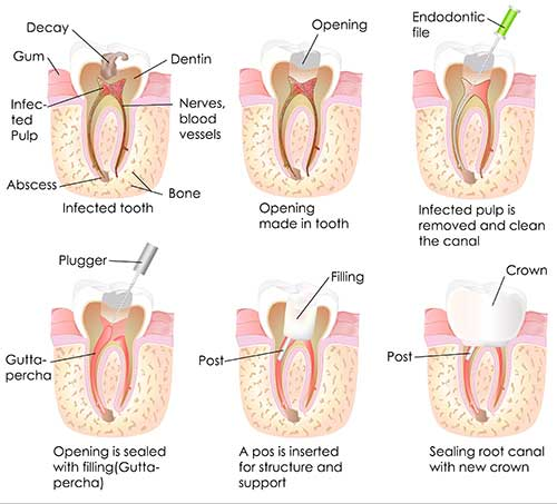 Root Canal Therapy in Bloomington