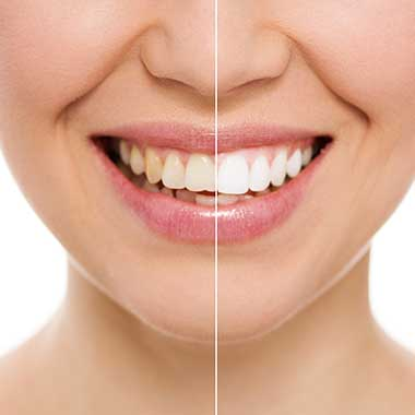 Teeth Whitening Bloomington